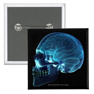 X-ray of the brain inside a skull pinback button
