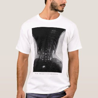 X-Ray Of Woman In A Corset T-Shirt