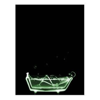 X-Ray Skeleton Bath Black Green Post Card