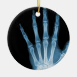 X-RAY SKELETON HAND FINGERS BLUE CHRISTMAS TREE ORNAMENTS