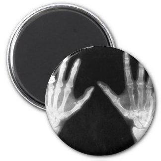X-Ray Skeleton Hands & Jewelry - B&W 2 Inch Round Magnet