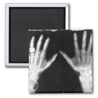 X-Ray Skeleton Hands & Jewelry - B&W 2 Inch Square Magnet