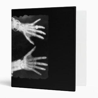 X-Ray Skeleton Hands & Jewelry - B&W Binder
