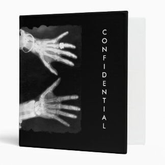 X-Ray Skeleton Hands & Jewelry - B&W CONFIDENTIAL Binder