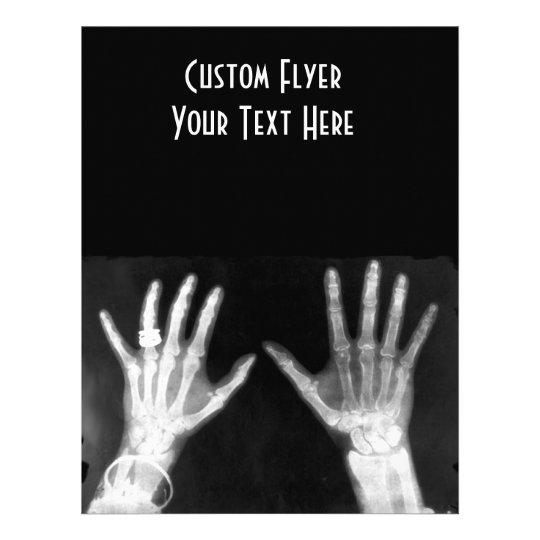 X-Ray Skeleton Hands & Jewelry - B&W Flyer