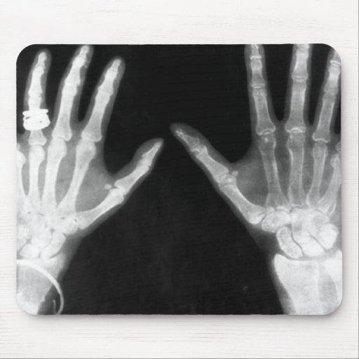 X-Ray Skeleton Hands & Jewelry - B&W Mouse Pad