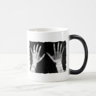 X-Ray Skeleton Hands & Jewelry - B&W Mug