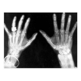 X-Ray Skeleton Hands & Jewelry - B&W Postcard