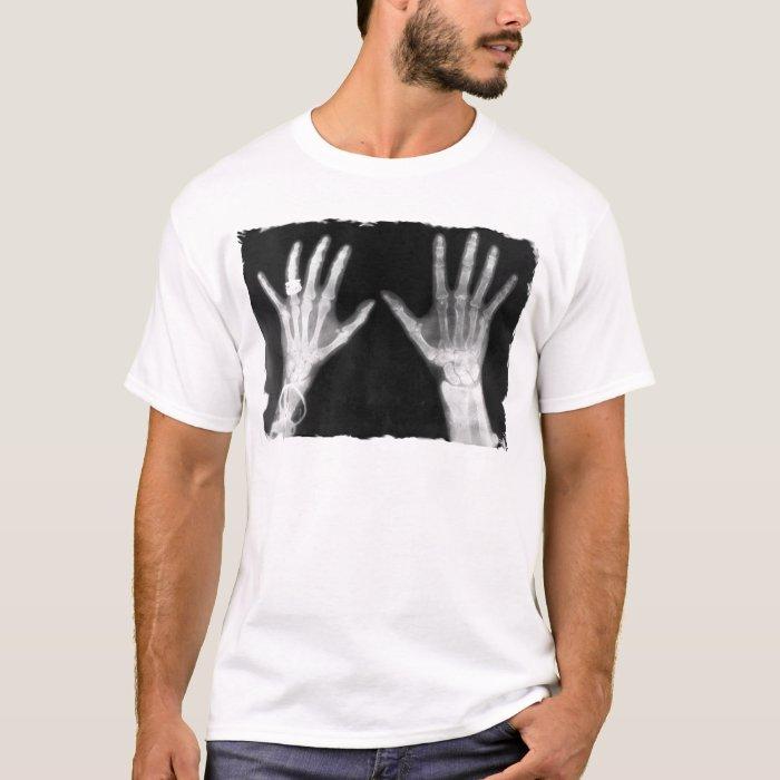 X-Ray Skeleton Hands & Jewelry - B&W T-Shirt