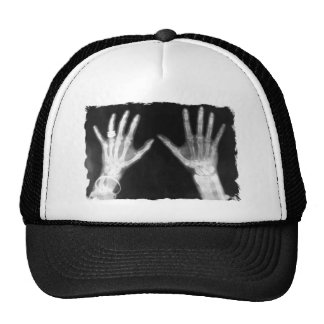 X-Ray Skeleton Hands & Jewelry - B&W Trucker Hat