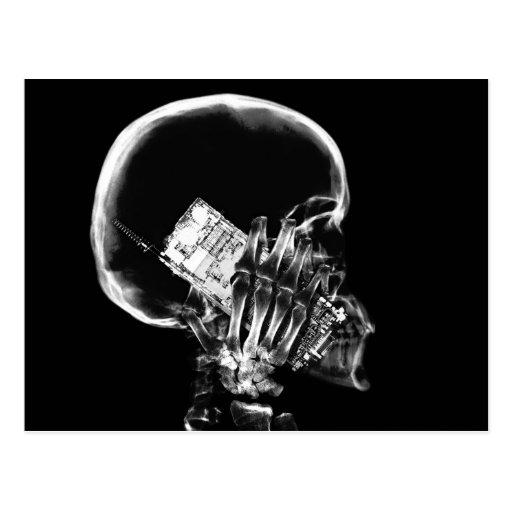 X-RAY SKELETON ON CELL PHONE BLACK & WHITE POSTCARD