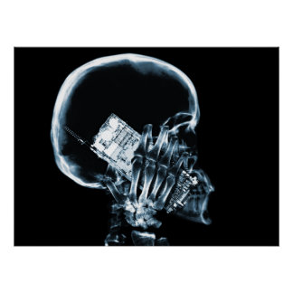X-RAY SKELETON ON PHONE - BLUE POSTER