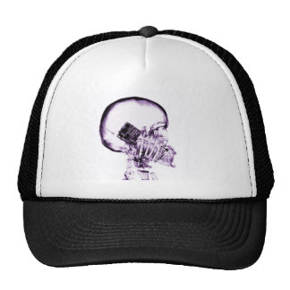 X-RAY SKELETON ON PHONE - PURPLE TRUCKER HAT