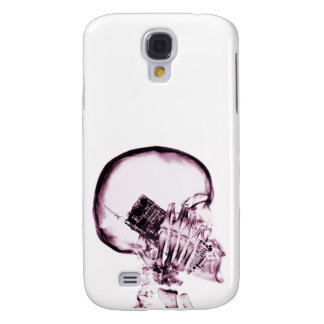 X-RAY SKELETON ON - PINK GALAXY S4 COVER
