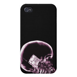 X-RAY SKELETON ON - PINK iPhone 4/4S CASE