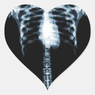 X-RAY SKELETON TORSO RIBS - BLUE HEART STICKER