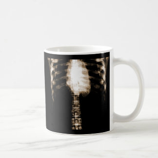 X-RAY SKELETON TORSO RIBS - SEPIA CLASSIC WHITE COFFEE MUG