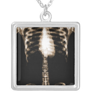 X-RAY SKELETON TORSO RIBS - SEPIA PERSONALIZED NECKLACE