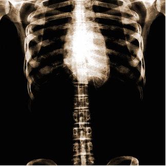 X-RAY SKELETON TORSO RIBS - SEPIA PHOTO CUT OUTS