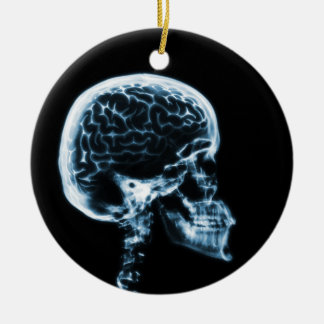 X-RAY SKULL BRAIN - BLACK & BLUE CERAMIC ORNAMENT