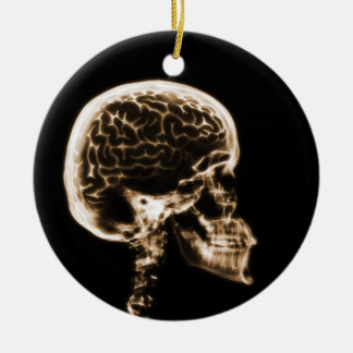 X-RAY SKULL BRAIN - BLACK & ORANGE CERAMIC ORNAMENT