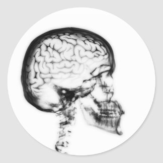 X-RAY SKULL BRAIN - BLACK & WHITE CLASSIC ROUND STICKER