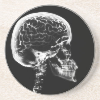 X-RAY SKULL BRAIN - BLACK & WHITE DRINK COASTER