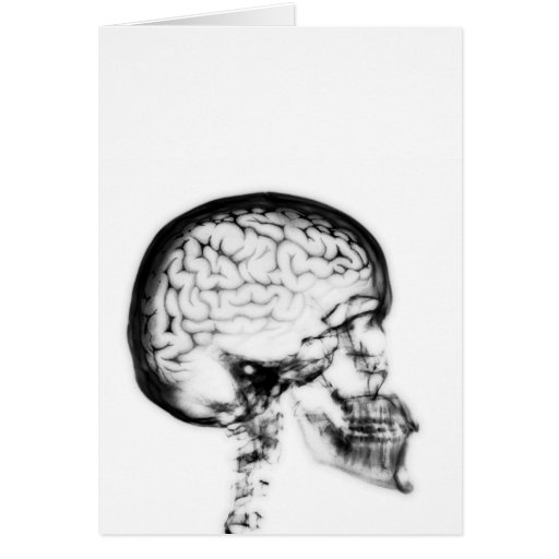 X-RAY SKULL BRAIN - BLACK & WHITE GREETING CARD