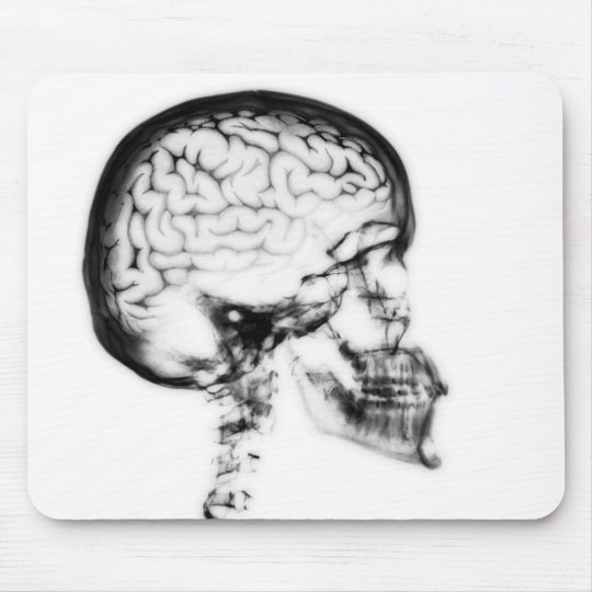 X-RAY SKULL BRAIN - BLACK & WHITE MOUSE PAD
