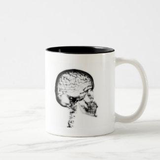 X-RAY SKULL BRAIN - BLACK & WHITE Two-Tone COFFEE MUG