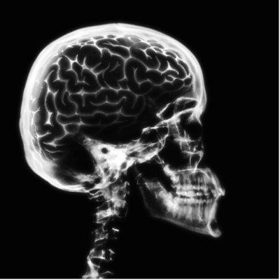 Beynimizdeki Kara Leke