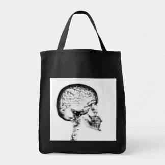 X-RAY SKULL BRAIN - BLACK & WHITE TOTE BAG