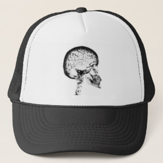 X-RAY SKULL BRAIN - BLACK & WHITE TRUCKER HAT