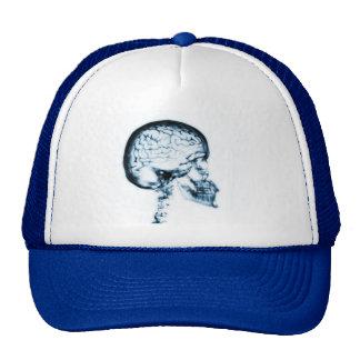 X-RAY SKULL BRAIN - BLUE TRUCKER HAT