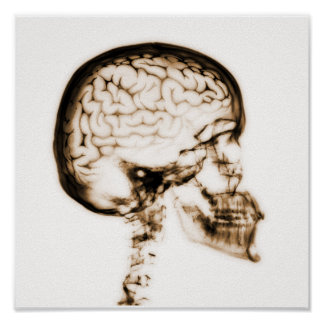 X-RAY SKULL BRAIN - ORANGE POSTER
