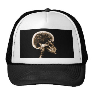 X-RAY SKULL BRAIN - ORANGE TRUCKER HAT
