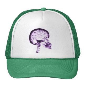 X-RAY SKULL BRAIN - PURPLE TRUCKER HAT