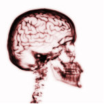 X-RAY SKULL BRAIN - RED PHOTO SCULPTURES