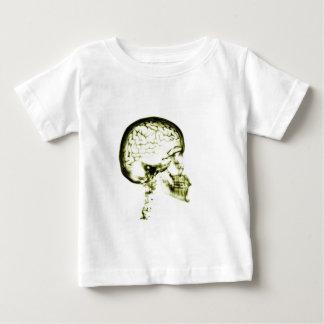 X-RAY SKULL BRAIN - YELLOW BABY T-Shirt