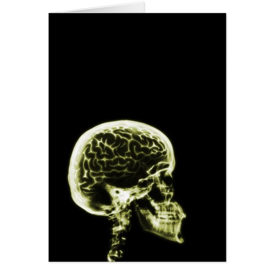 X-RAY SKULL BRAIN - YELLOW CARD