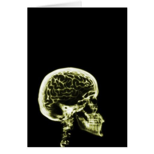 X-RAY SKULL BRAIN - YELLOW CARDS