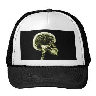 X-RAY SKULL BRAIN - YELLOW TRUCKER HAT