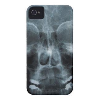 X-ray Skull iPhone 4 Cases