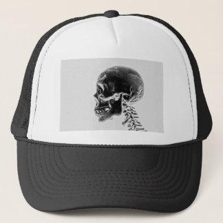 X-Ray Skull Trucker Hat