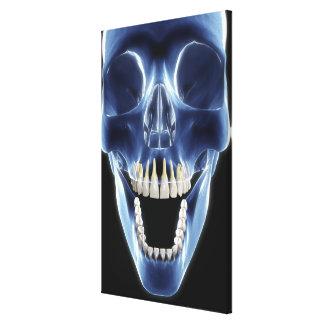 X-ray style look at human teeth canvas print