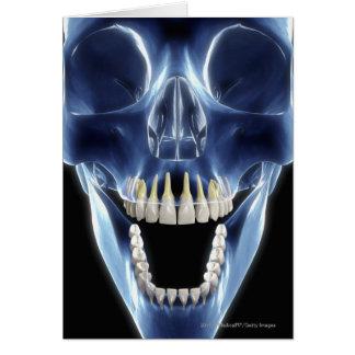 X-ray style look at human teeth card