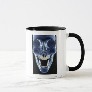 X-ray style look at human teeth mug