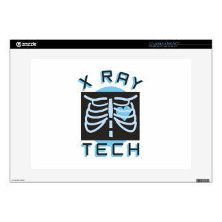 """X-Ray Tech Skin For 15"""" Laptop"""