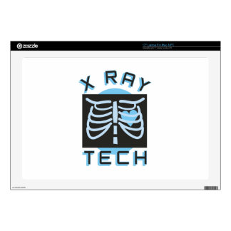 X-Ray Tech Skin For Laptop