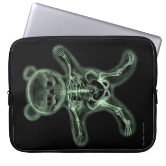 X-Ray Teddy Bear Computer Sleeve